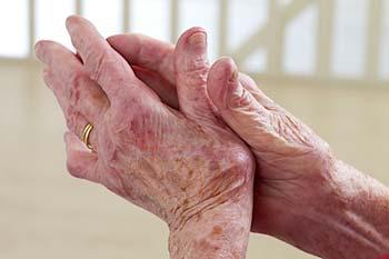 Reuma vingers: een beginnende vorm van reuma